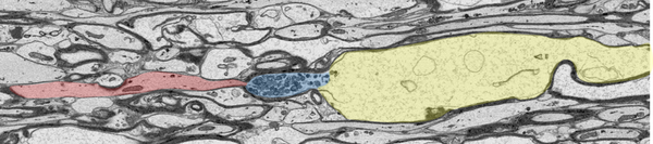 Axonaler Schaden im verwendeten Tiermodell, dargestellt durch eine elektronenmikroskopische Bildgebung