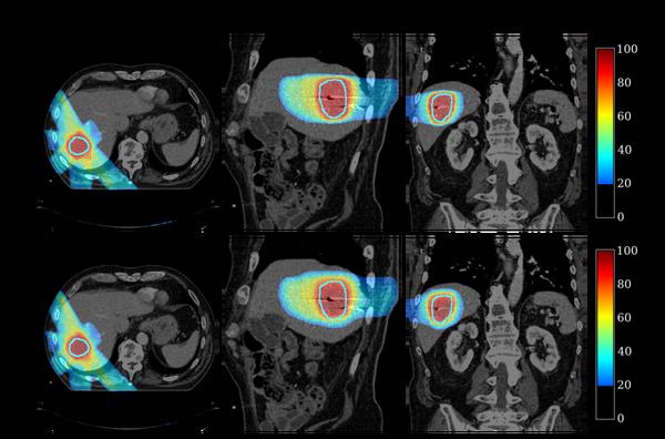 Rekonstruierte 4D Dosisverteilung der Behandlung eines Leberkarzinoms
